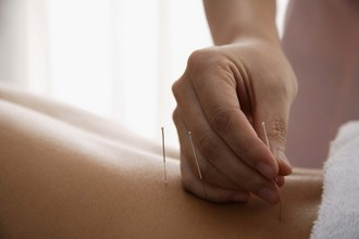 Needles being placed in back for acupuncture treatment